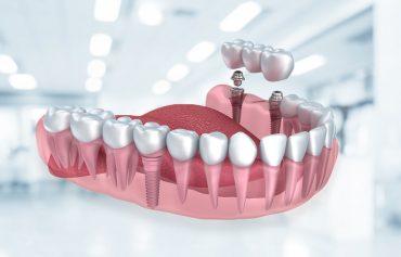 Dental İmplant Uygulamaları