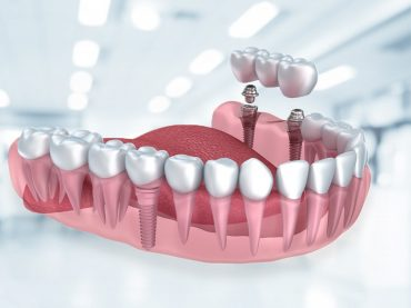 Dental İmplant Uygulamaları
