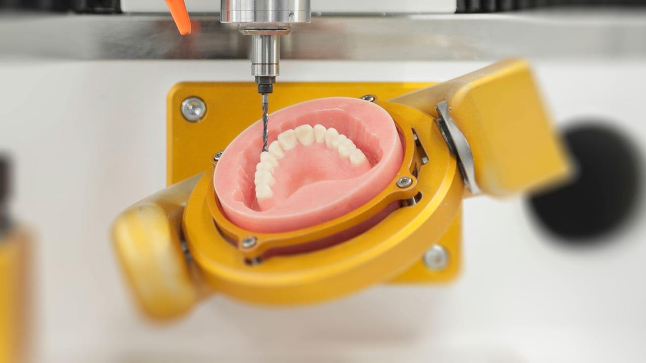 CAD CAM Protez ve tedavisi