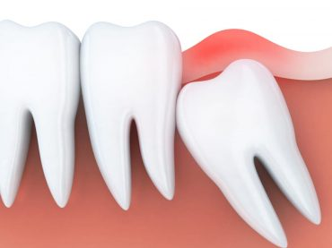 Diş Çekimi ve Gömülü Diş Çekimi