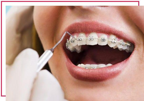 Ortodonti tedavisi nasıl yapılır?