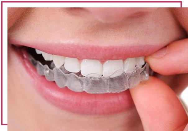 Invisaling braketsiz ortodontik (şeffaf plak) tedavi Nedir?