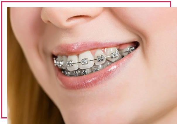 Ortodonti nedir? Nelere bakar? Hangi tedaviler ile ilgilenir?