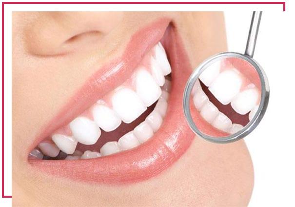 Diş beyazlatmaya neden ihtiyaç duyulur?