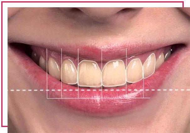 Restoratif diş tedavisi nedir?