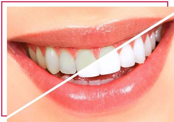 Diş beyazlatma (Bleaching) nedir? Nasıl Yapılır? Ne kadar tutar?