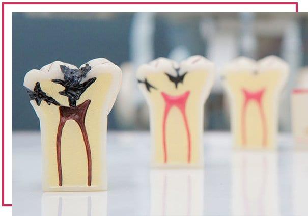 Endodonti Hangi Tedavileri Gerçekleştirir?