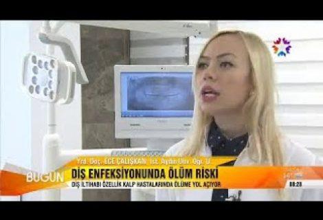 Diş enfeksiyonunda ölüm riski