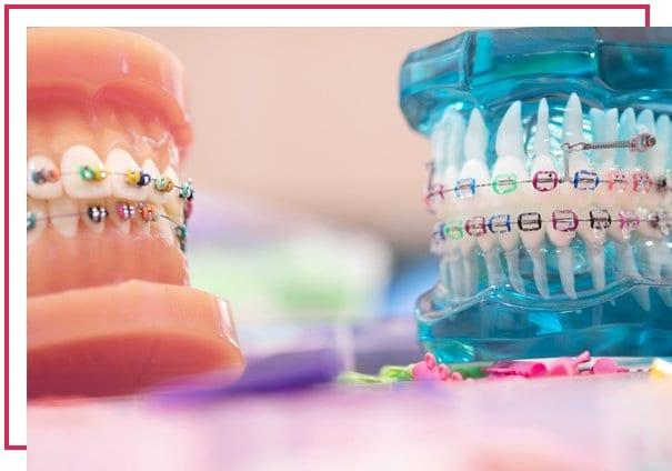 Ortodonti Nelere Bakar